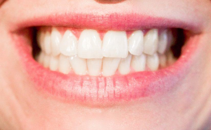 Obecna technika używana w salonach stomatologii estetycznej zdoła sprawić, że odzyskamy piękny uśmieszek.